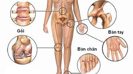 Có thể khỏi hoàn toàn mọi chứng tích bệnh viêm xương khớp sau 2 đến 3 tháng